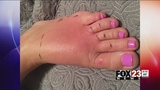 Tulsa woman has warning for other after being bitten by brown recluse spider